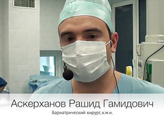 Лапароскопическая продольная резекция желудка.