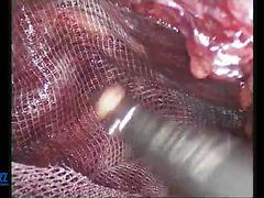Трансабдоминальная преперитонеальная пластика (TAPP) двусторонней паховой грыжи