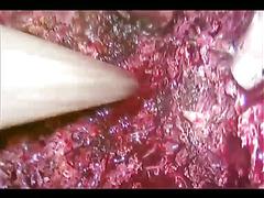 Лапароскопическая и роботическая резекционная хирургия печени. Современное состояние проблемы.